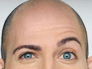 Что делать, если выпадают ресницы или волосы на бровях