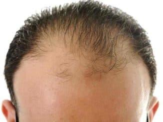 alopetsiya u muzhchin