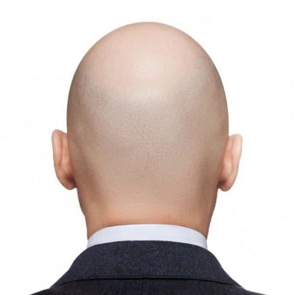 totalnaya alopetsyya