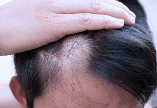 alopetsyya