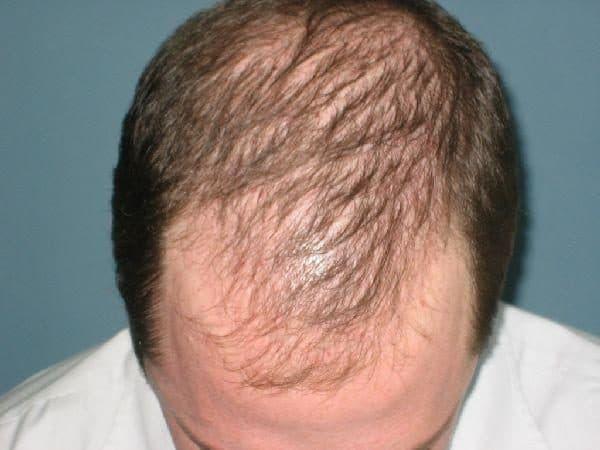 Diffuznaya alopetsiya