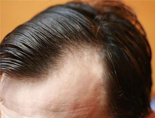 alopecija